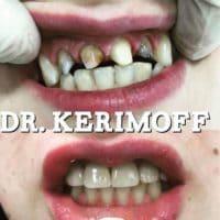 Лечение зубов, доктор Керимов Эшгин