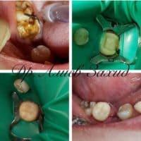 Восстановление 4.7 зуба композитом светового отверждения от доктора Алиева Захида