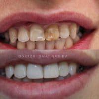Восстановление зубов, доктор Набиев Исмат