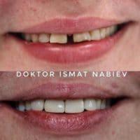 Исправление и лечение зубов, доктор Набиев Исмат