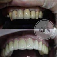 Лечение зубов, доктор Набиев Исмат