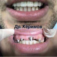 Восстановление зубов, доктор Керимов Эшгин