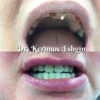 Полное восстановление утраченных зубов, доктор Керимов Эшгин