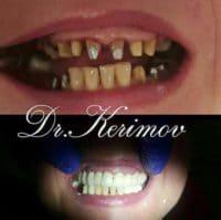Комплексная реставрация зубов,, доктор Керимов
