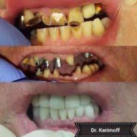 Восстановление верхнего и нижнего зубного ряда, доктор Керимов