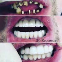 Восстановление зубных рядов, доктор Керимов