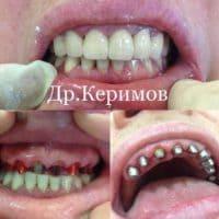 Имплантация зуба, доктор Набиев И.Б.
