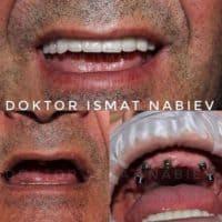 Эстетическая реабилитация зубов, доктор Набиев Исмат
