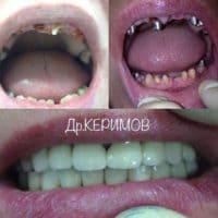 Полное восстановление утраченных зубов, имлантация