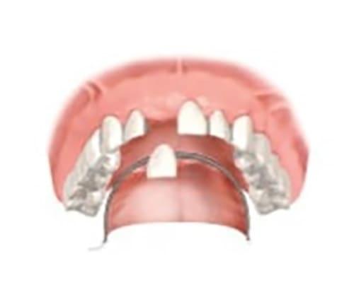 Частично съемный протез при отсутствии одного зуба