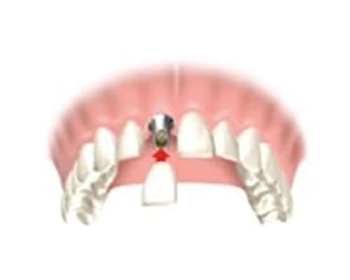 Имплант при отсутствии одного зуба