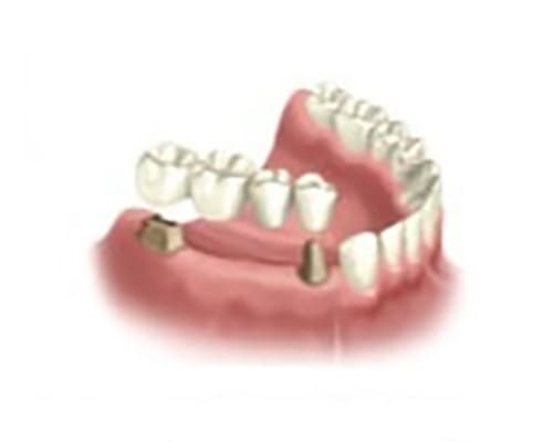 Мостовидный протез при отсутствии нескольких зубов