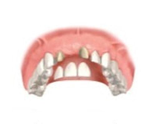 Мостовидный протез при отсутствии одного зуба